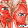 大臀筋重度の筋肉痛