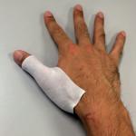 右手親指負傷・・・してた